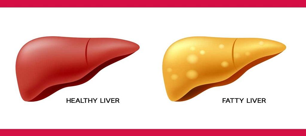 Fatty liver best treatment in Ayurveda